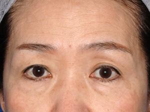 上下瞼たるみ取り治療2ヶ月後モニター様