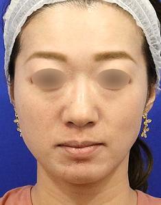 注射治療で小顔&イメージアップモニター様2週間後