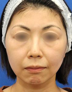 お顔の引き締め&脂肪減少ウルトラセルQプラスモニター様