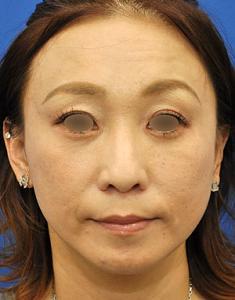 注射&HIFU照射お顔のメンテナンス治療モニター様