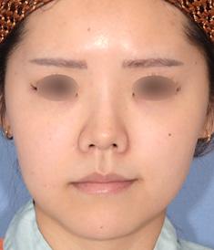 他院様治療後の鼻中隔延長+鼻尖形成+鼻翼縮小術モニター様1ヶ月後