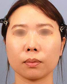 ボリュームダウン&タイトニング小顔治療モニター様