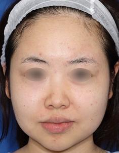 RF治療+ボトックス注射の小顔治療4ヶ月後モニター様