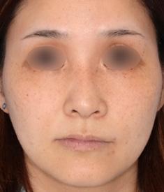 鼻中隔延長+鼻尖形成+隆鼻術6ヶ月後モニター様