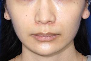 唇がプルンと鼻の下が短くなりましたリップリフトモニター様