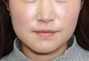 えらボトックス+脂肪溶解注射の小顔治療モニター様