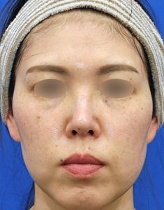 ボリュームダウンとタイトニング小顔治療モニター様