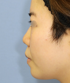 鼻尖形成で鼻先の形を整えましたモニター様3週間後