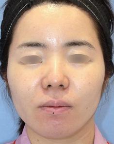 鼻先の丸みを整える鼻中隔延長術3ヶ月後モニター様