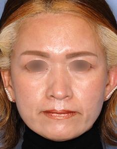 お顔をバランス良くスッキリと整えるFRTコンセプトモニター様