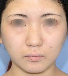 鼻中隔延長術+ハンプ除去の複合治療モニター様1ヶ月半後