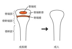 子どもの骨折で手術&入院した話 @上海 ② 骨端線骨折とは