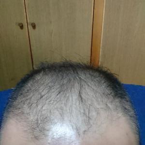 ミノタブ デュタス 亜鉛 L-リジン 908日目 ひげが濃くなった