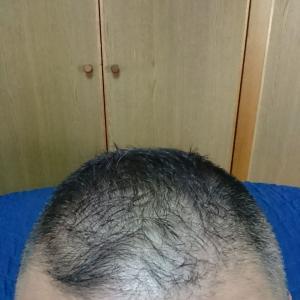 ミノタブ デュタス 亜鉛 L-リジン 977日目 血液型A型で、頭髪の薄い男性
