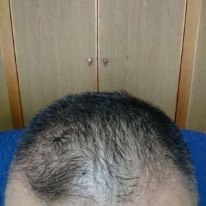 ミノタブ デュタス L-リジン 999日目 風邪