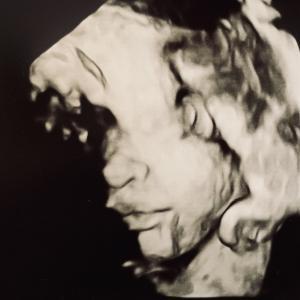 妊娠中のエコーは3〜4回でじゅうぶん!?