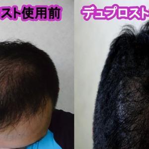 改善鈍化気味?デュプロストとミノタブで改善育毛/1ヶ月