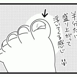 【1歳】左足親指の爪
