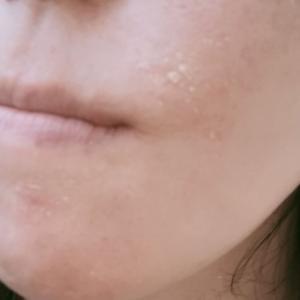 トレチノインクリームで肌がツルツルになる?5日目皮が剥けてきた