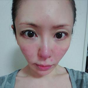 肌荒れの原因を突き止めるべく、アレルギーパッチテストをすることに①