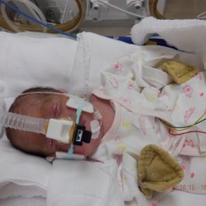 超低体重児の息子  生後74日