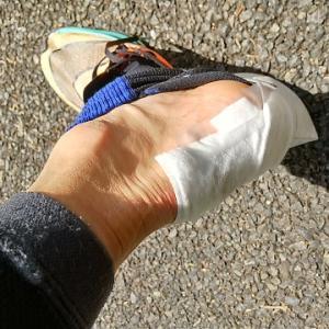 新 靴擦れ対策