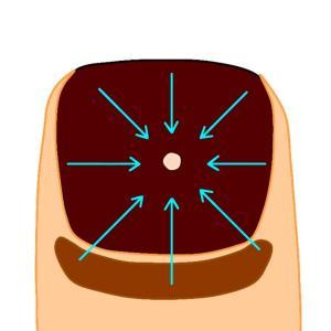 爪下血腫の血抜き治療とラン再開について