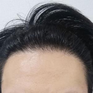 韓国モゴン皮膚科植毛からそろそろ3年目になります。現在の様子。