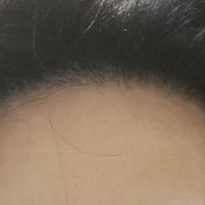 植毛から10ヶ月経過(11ヶ月目) 完成形