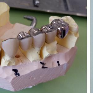 奥歯治療、麻雀の結果は? /NK19JL⑧