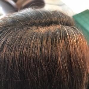 低ジアミン白髪染めイチゴカラービフォーアフター