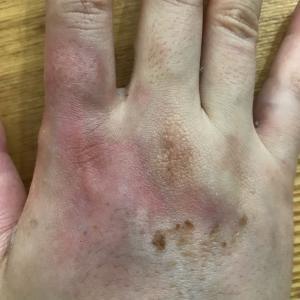 指の痺れと手の火傷の備忘録⑦〜火傷から5週間経過〜