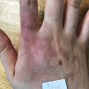 指の痺れと手の火傷の備忘録⑧〜火傷から6週間経過〜
