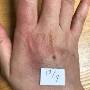 指の痺れと手の火傷の備忘録⑨〜火傷から7週間経過〜