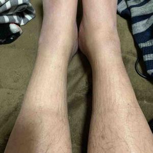 足🦵の浮腫みの凄さ😱