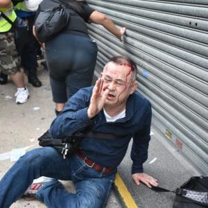 中国人「香港デモで中国人と間違えられた日本人が暴行を受けたようだ」