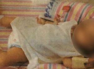 ヴィーガン「幼児にも食事制限させていたら栄養失調で骨折してもうた!」→海外「児童虐待かな」