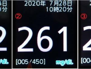 血糖測定器の誤表示