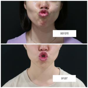 口回りの疲れ改善+αフェイスラインが整う治療♪