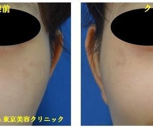 ヒアルロン酸・クレヴィエルで鼻先・鼻筋を作り、ボリフトで涙袋を作りました。