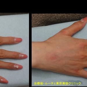 ヒアルロン酸で手の甲も若返りました。持続1年6ヶ月のボリフト使用。