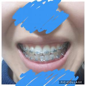 顎変形症:調整10回目