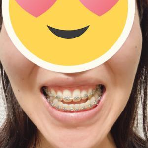 顎変形症:調整19回目 術前矯正終了です!