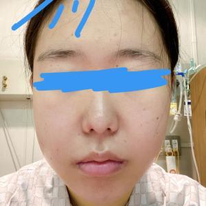 顎変形症:手術後6日目