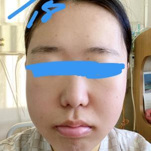 顎変形症:退院しました〜!