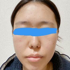 顎変形症:術後2週間 大学病院受診