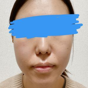顎変形症:術後1ヶ月検診