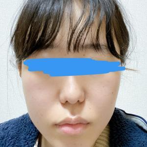 顎変形症:術後1ヶ月半 大学病院受診