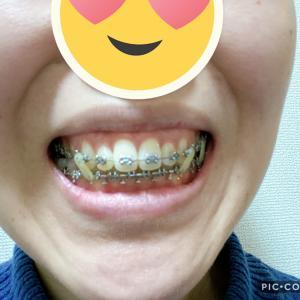 顎変形症:術後矯正1回目
