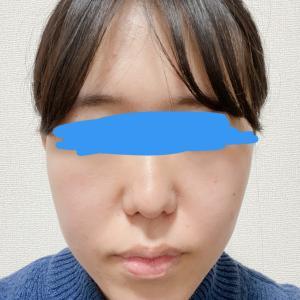 顎変形症:大学病院受診4回目